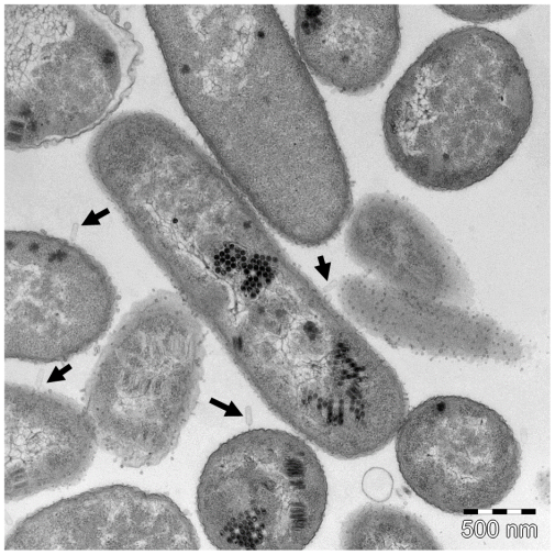 Replication of phages (black hexagonal shapes) within host cells. Empty phage capsids can be seen interacting with bacterial surface (black arrows).